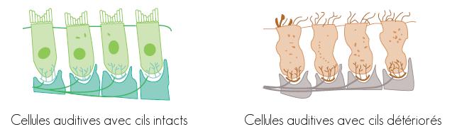 Cellules ciliées - Système auditif