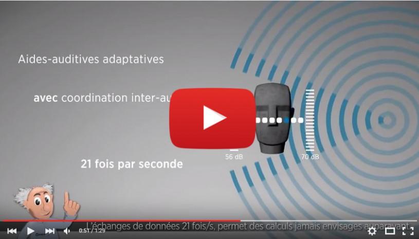 Vidéo sur la technologie auditive InterEar Widex
