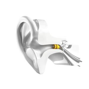 Aide auditive Lyric de Phonak à retrouver dans les centres AUDITION CONSEIL