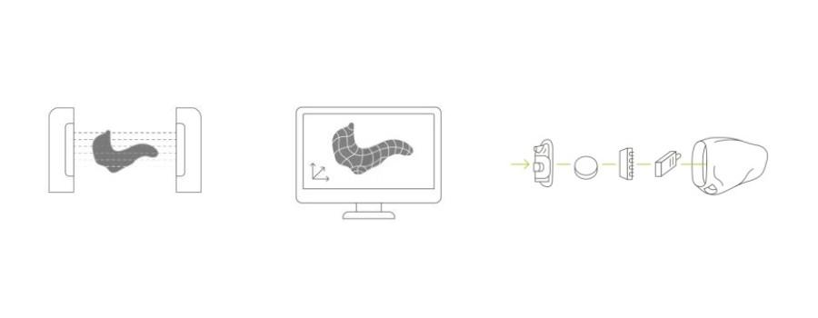 Technologie EarMatch par UNITRON