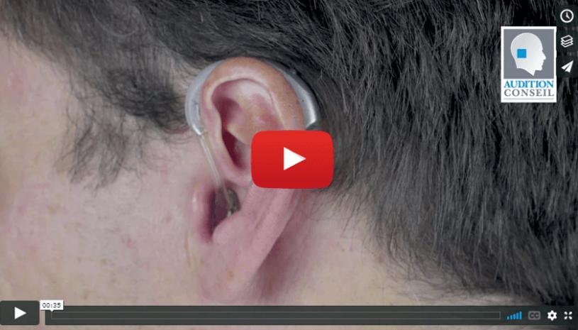 Mettre en place un appareil contour ou micro-contour d'oreille