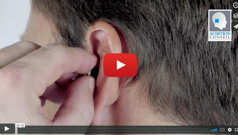 Vidéo mettre en place un appareil intra-auriculaire