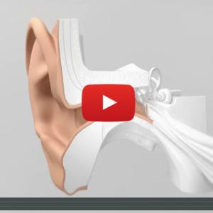 Découvrez comment positionner efficacement les aides auditives Lyric 3 de Phonak