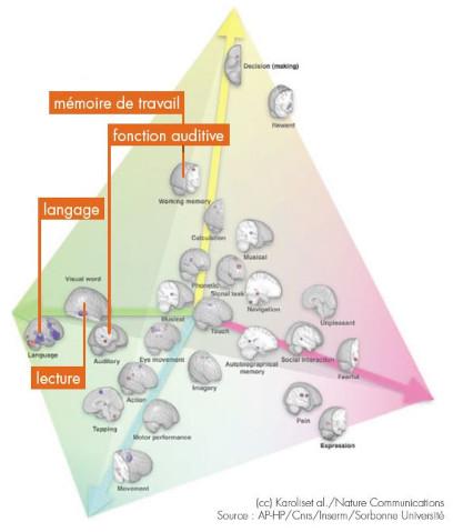 Les aides auditives protègent les fonctions cérébrales