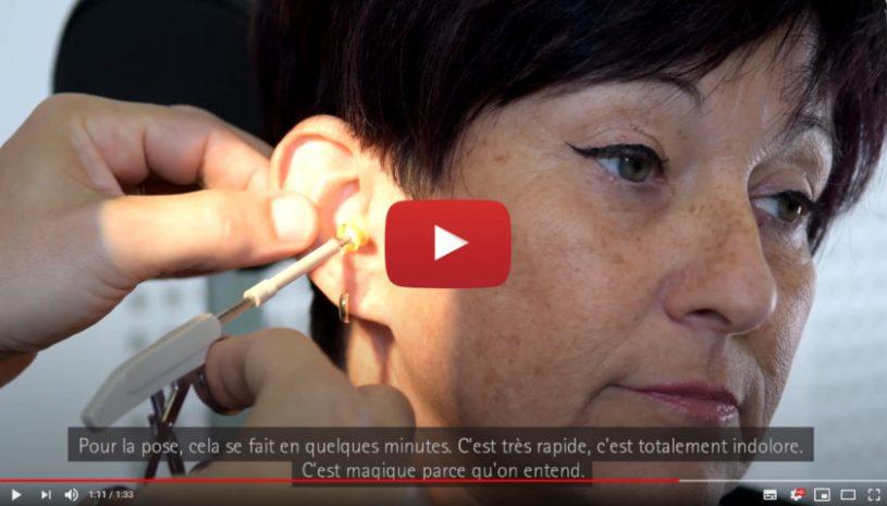 """Vidéo """"Colette raconte son expérience avec Lyric™"""" de la marque PHONAK"""